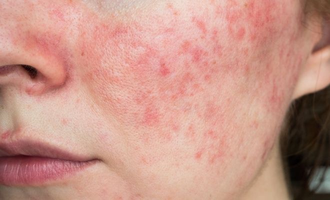 The Most Common Causes of Rosacea