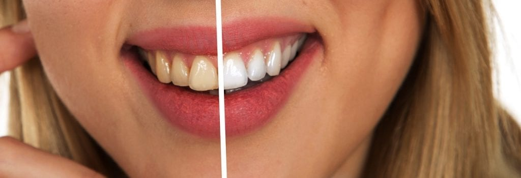 The Dangers Of Charcoal Teeth Whitening Sd Entertainer Magazine